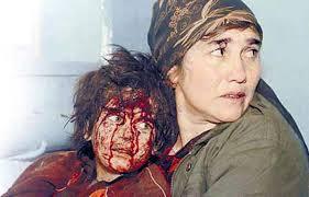 child victim of war